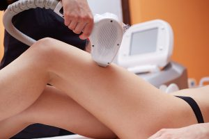 Laser Hair Removal for Women's Legs